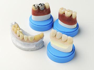 高品質の歯科技工士との連携